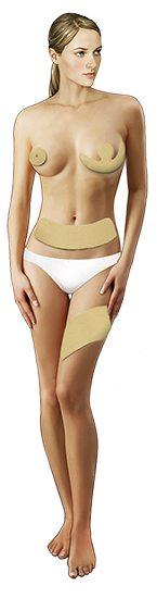 Scar and burn Reductor de cicatrices Laminas Talla mediana - Contribuye a la eliminación de cicatrices